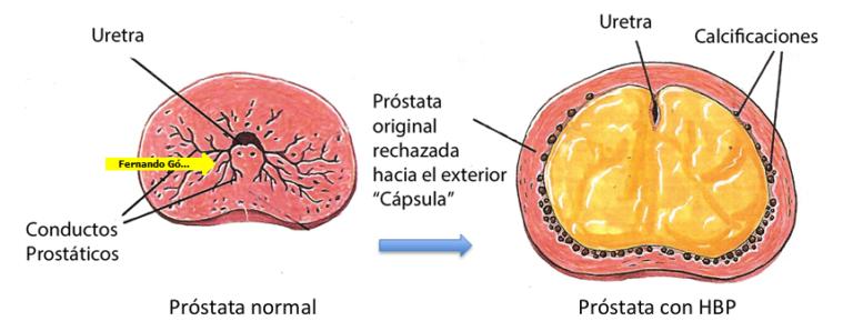 que quiere decir hipertrofia prostatica grado 1