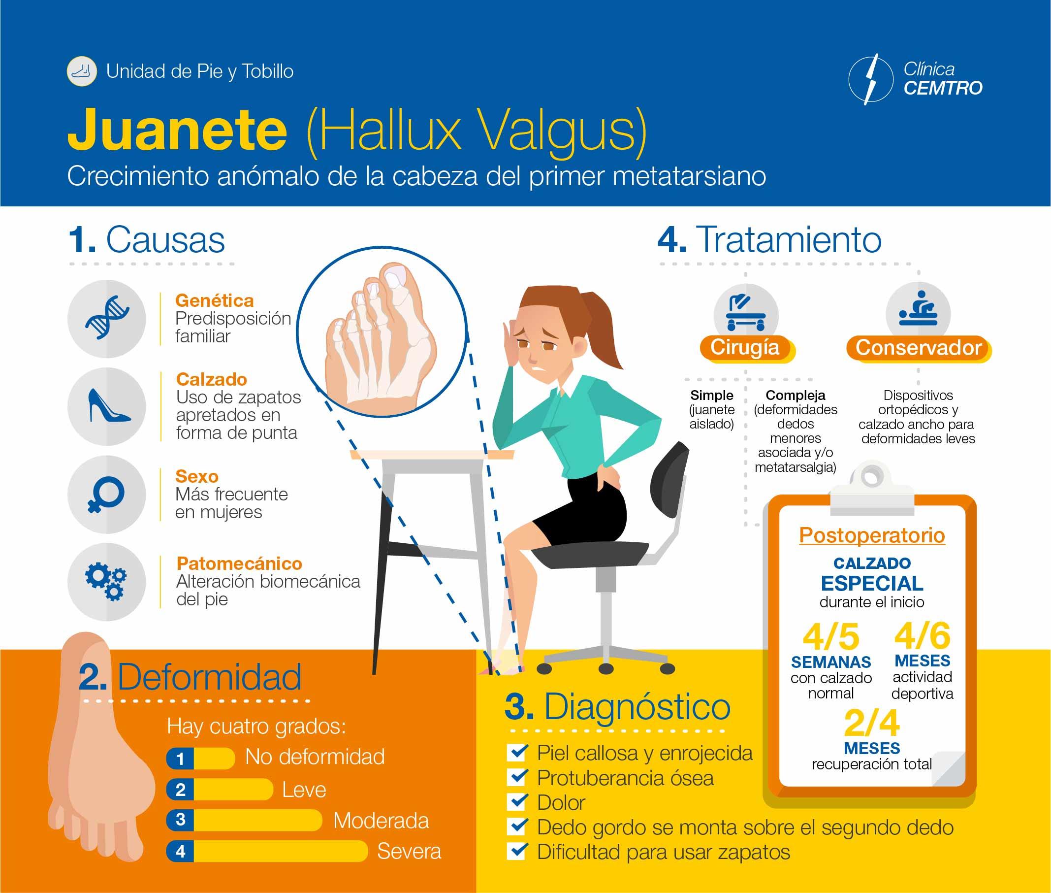 Infografia Proceso Juanete