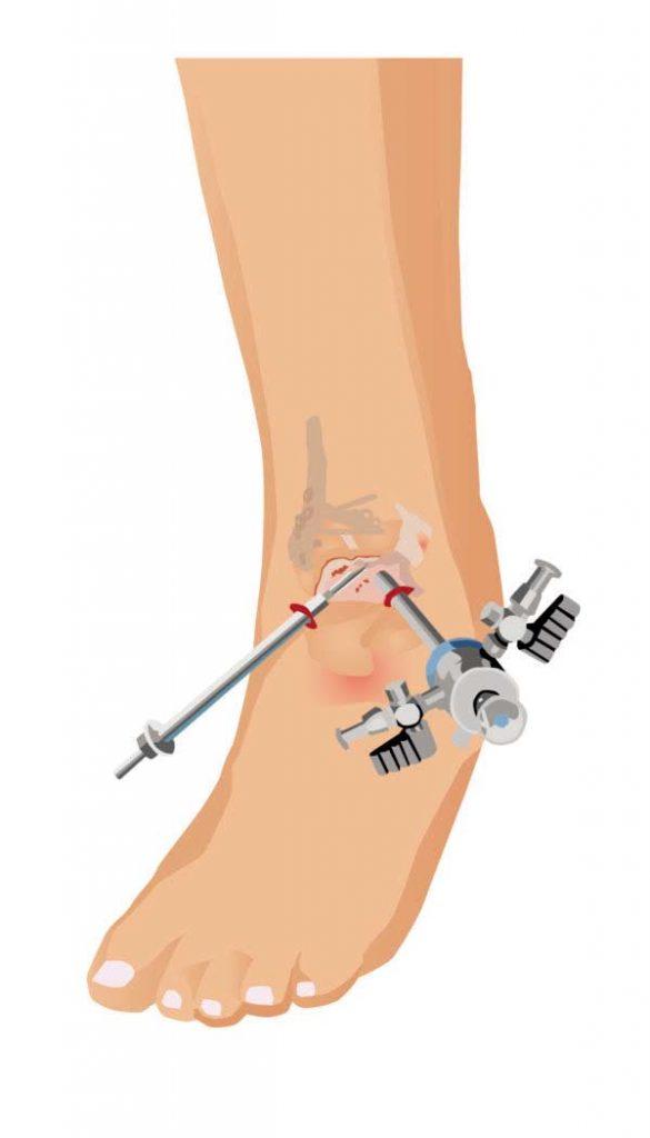 Intervencion Artroscopica Tobillo