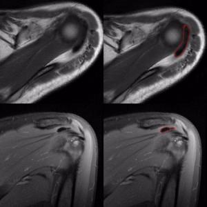 Radiografia Tendinitis Calcificante Hombro